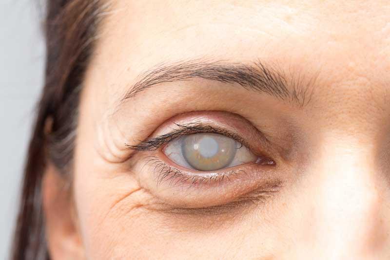 Cataracts  Lakeland, FL